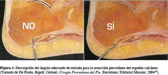 plantar fasciitis corticosteroid injection pain