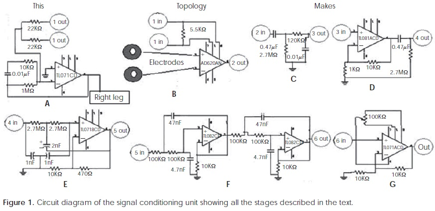A simple alternative for modulating and recording the PQRST